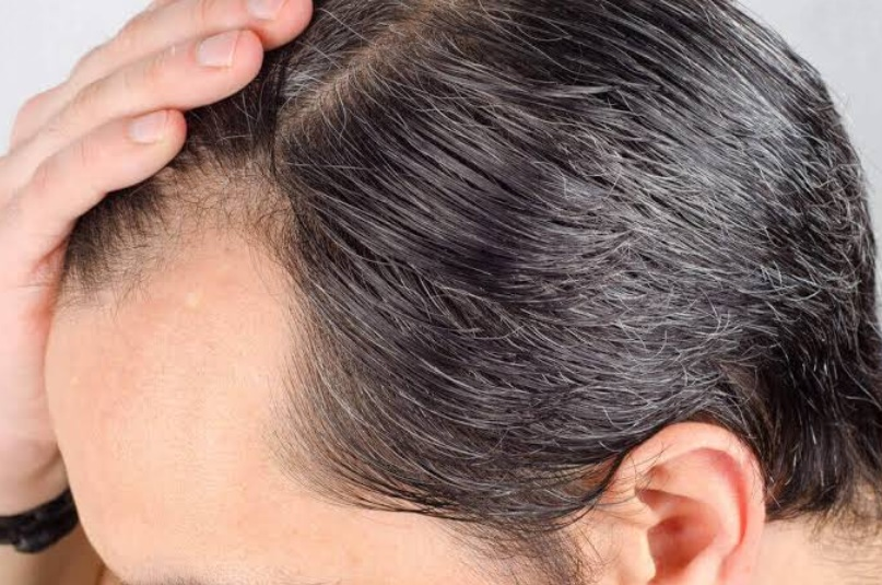 Kalıtsal saç dökülmesi