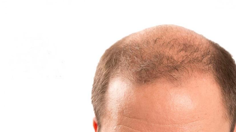 2020 yılı güncel saç ekimi fiyatları ne kadar?