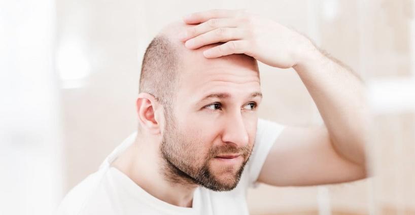 Doğal saç ekimi nasıl yapılır?