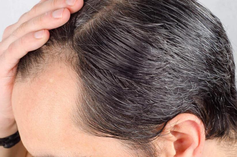 Ekilen saçlar dökülür mü?