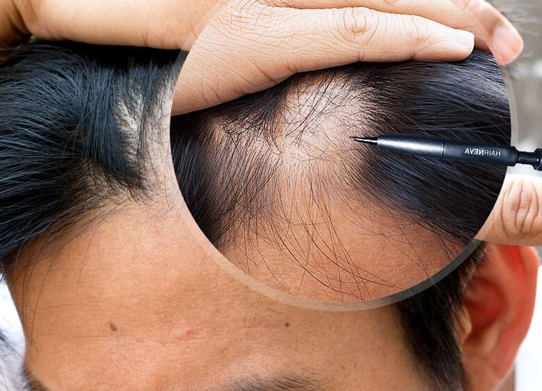 FUE saç ekim yöntemi nedir?