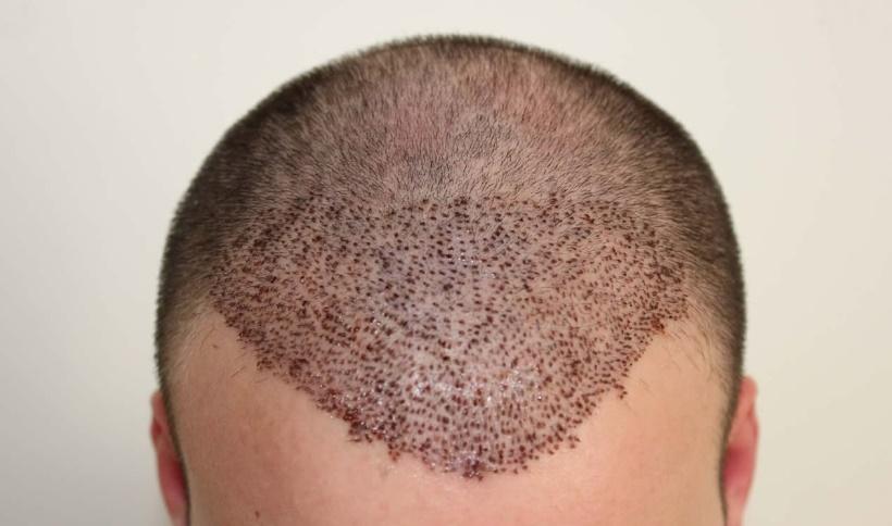 Saç ekim maliyeti ne kadardır?