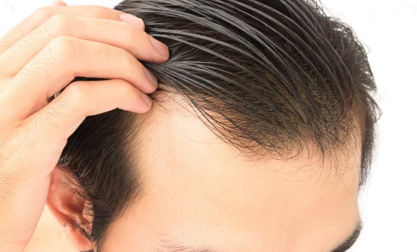 Saç ekimi işlemi ne kadar sürer?