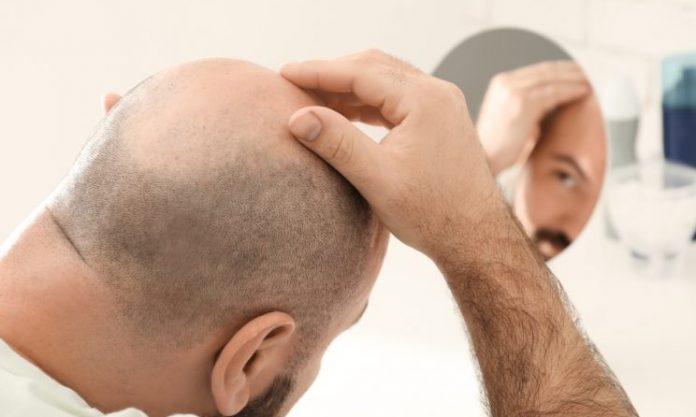 Saç ekimi ne zaman yapılmalı?