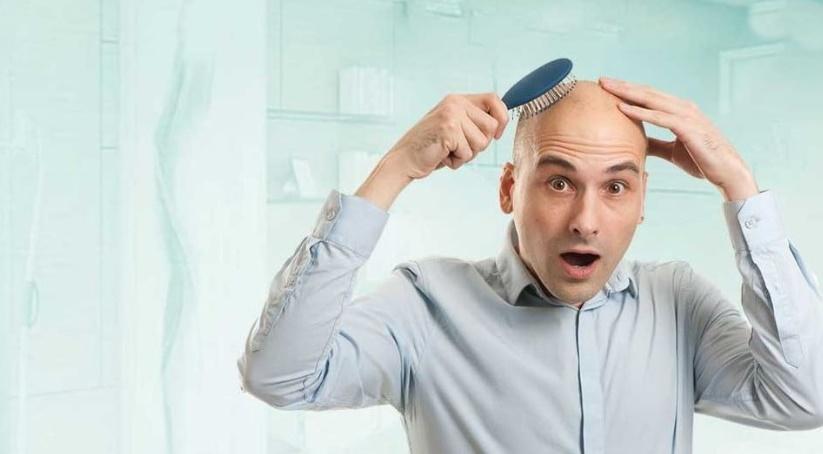 Saç ekimi nedir