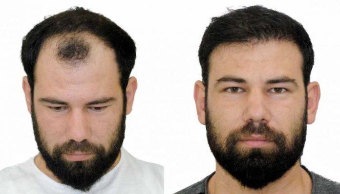 Saç ekimi öncesi ve sonrası resimleri