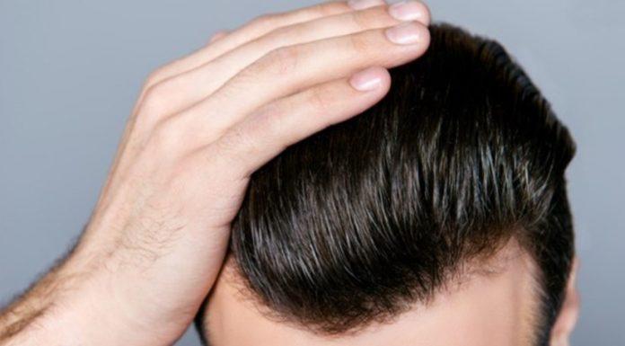 Saç ekimi ağrıların oluşma nedeni nedir?