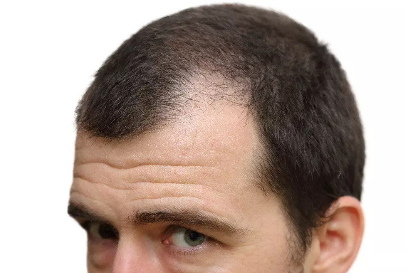 Saç ekimi sonrası saçlar ne zaman çıkar?