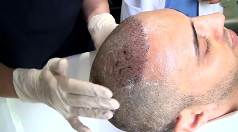 Saç Ekiminden Sonra İlk Yıkama Nasıl Yapılır?