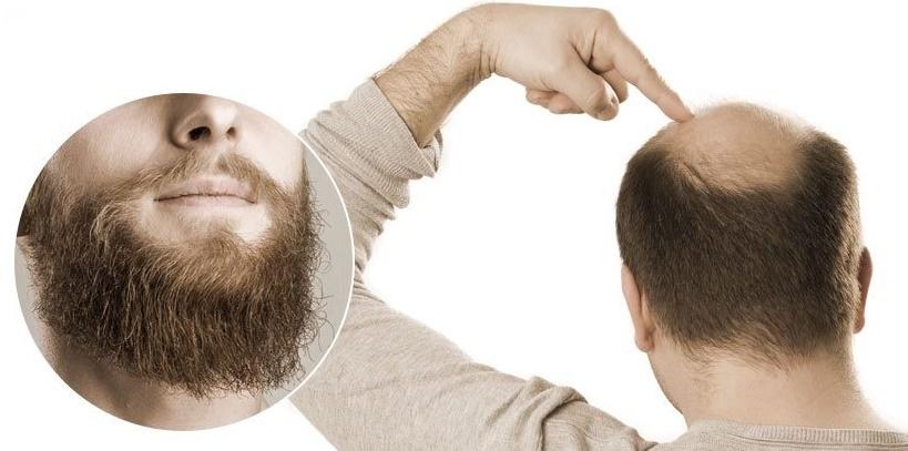 Sakaldan saç ekimi nasıl yapılır?