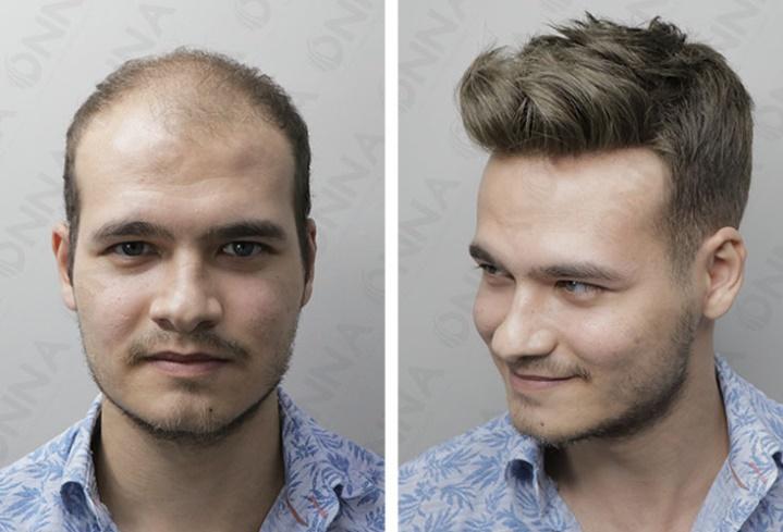 Protez Saç Seçimi Yaparken Dikkat Edilmesi Gerekenler