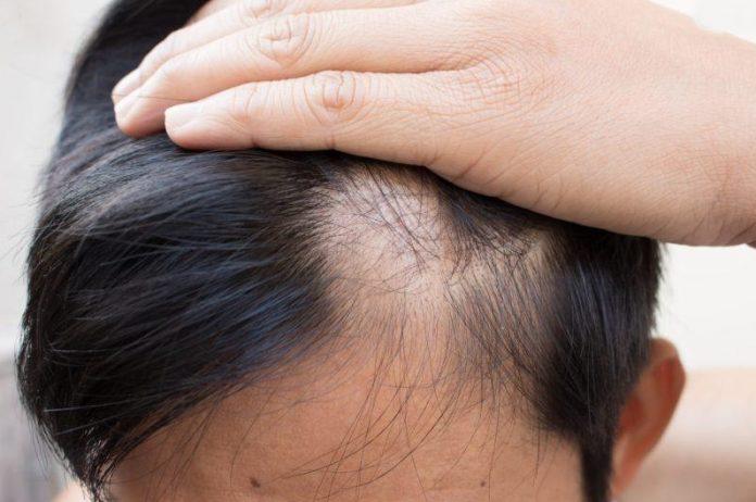 Saçkıran Tipi Saç Dökülmesi Nedir?