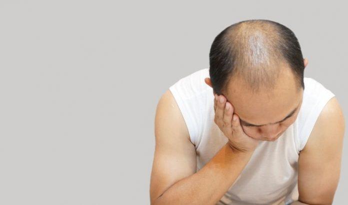 SGK saç ekimi ücretini karşılar mı?