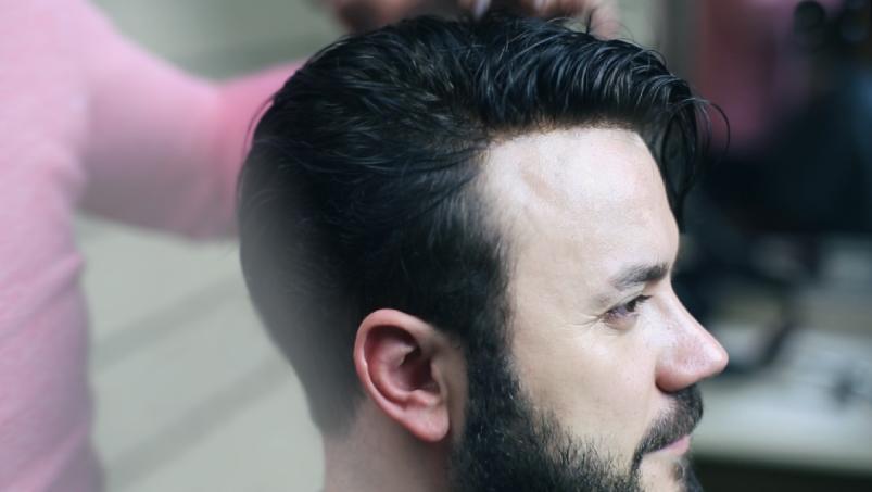 Protez Saç Hakkında Bilinmesi Gerekenler